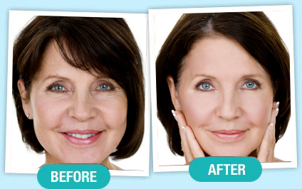 Phytoceramides Women Before & After