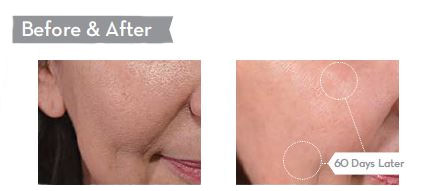 Phytoceramides Cream Before & After