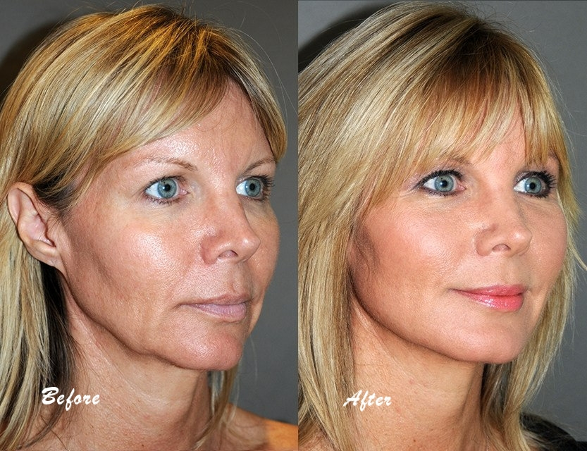 phytoceramides before and after 2