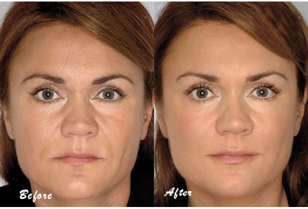 Phytoceramides Before and after 1