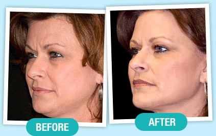 Phytoceramides before and after 3