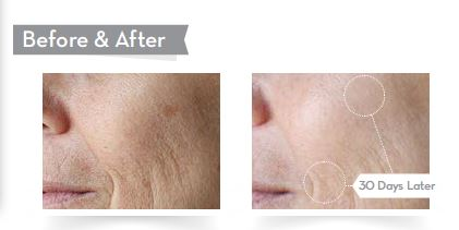Phytoceramides Before After